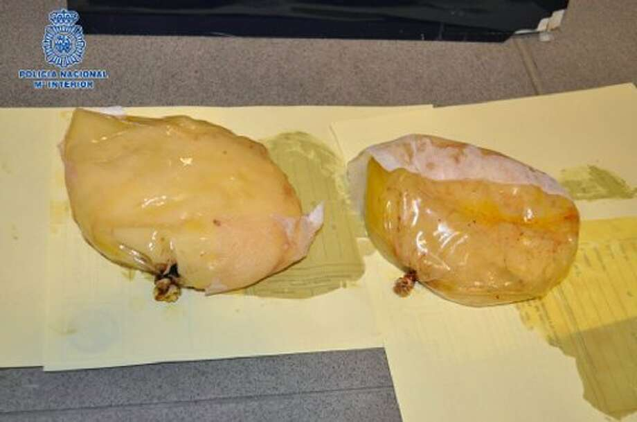 Breast implants that were filled with cocaine and being used by a woman arrested in Spain. (AFP Photo)