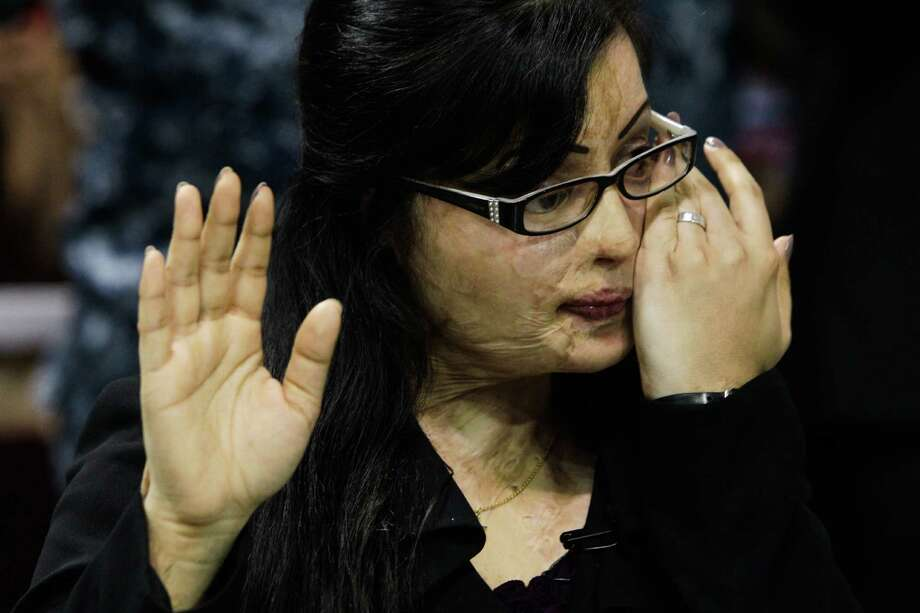 Julie Aftab, a Pakistani acid attack victim, wipes away tears as she takes the oath of citizenship at M.O. Campbell Center, July 31, 2012, in Houston. Aftab came to the U.S. for medical treatment after being burned with acid by men in Pakistan who accused her of insulting Islam because she is a devout Christian. Photo: Melissa Phillip, Houston Chronicle / © 2012 Houston Chronicle