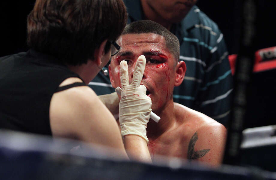 A ringside doctor checks Frankie Leal for alertness after he was knocked out by Evgeny Gradovich in the main event at the Top Rank Boxing matches at the Alamodome on March 31, 2012. Photo: TOM REEL, San Antonio Express-News / San Antonio Express-News