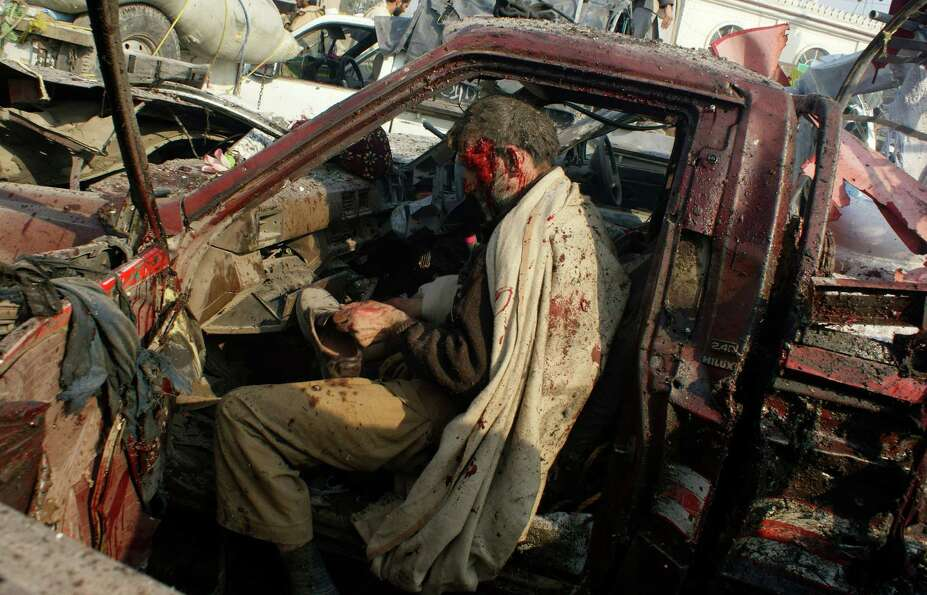In this Jan. 10, 2012 file photo, a man injured in a bomb blast puts on a shoe before being taken to