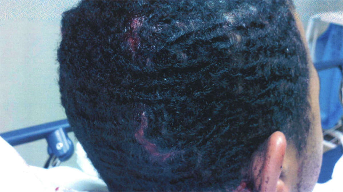 Head injuries sustained by an officer at the SeaTac Federal Detention Center after he was attacked by inmates Sabir Shabazz and Roy Fritts, pictured in this photo filed in U.S. District Court by federal prosecutors.
