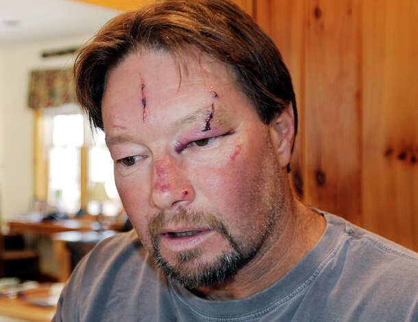 Roger Mundell Jr., bears cuts on his face at his home in Brookfield, Mass., on Monday after being attacked by a bobcat in his garage Sunday. The cat ran out of the garage and bit Mundell's 15-year-old nephew on the arms and back before it was shot dead. Photo: AP
