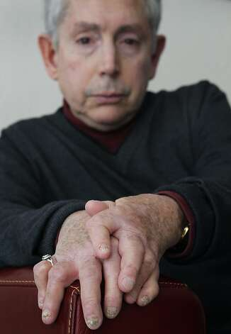 Fred Finkelstein's hands show the signs of psoriatic arthritis, which afflicts many who have psoriasis. Photo: Paul Chinn, The Chronicle