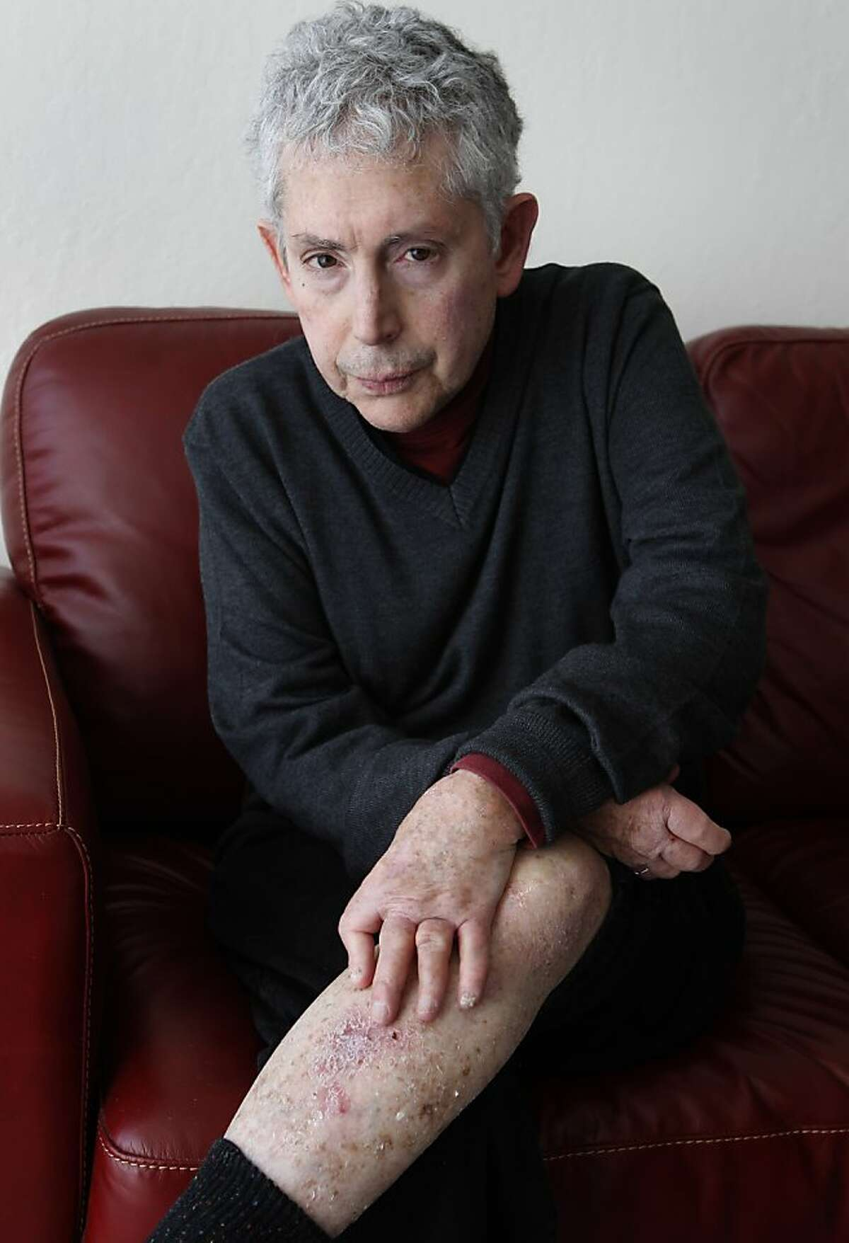 Fred Finkelstein is seen at his home in Oakland, Calif. on Thursday, Jan. 10, 2013. Finkelstein, 66, was diagnosed with psoriatic arthritis about 35 years ago, which has deformed his hands and caused widespread skin irritation.