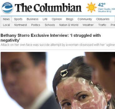 Bethany Storro suffered severe burns after she claimed she was attacked by a woman who threw acid in her face. Her story had holes and the burns did not look like the result of thrown acid. Storro later confessed that she burned herself, and that she suffered from body dysmorphic disorder, obsessive compulsive disorder, and depression. She plead guilty to a misdemeanor and received a one year suspended jail sentence, 240 hours of community service, and was ordered to repay almost $4000 in police overtime.Photo: With her face severely burned and wrapped in mummy bandages, Bethany Storro gained worldwide sympathy in 2010 when she described a startling assault. Storro, who is white, had said a black woman had randomly thrown acid on her face on a Vancouver, Wash. street. Then she admitted she had burned her face herself and made up the story.   Screen grab is from The Columbian newspaper, which interviewed Storro. Story is here.