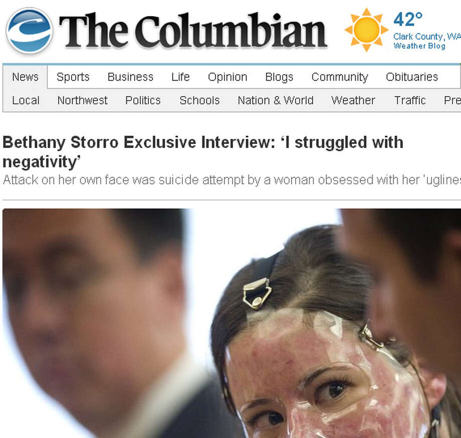 With her face severely burned and wrapped in mummy bandages, Bethany Storro gained worldwide sympathy in 2010 when she described a startling attack: A random stranger had thrown acid on her face on a Vancouver, Wash. street. She was able to offer a description of the attacker - a black woman with a ponytail (Storro is white). Then she admitted she had burned her face herself and made up the story.   Screen grab is from The Columbian newspaper; read more here.