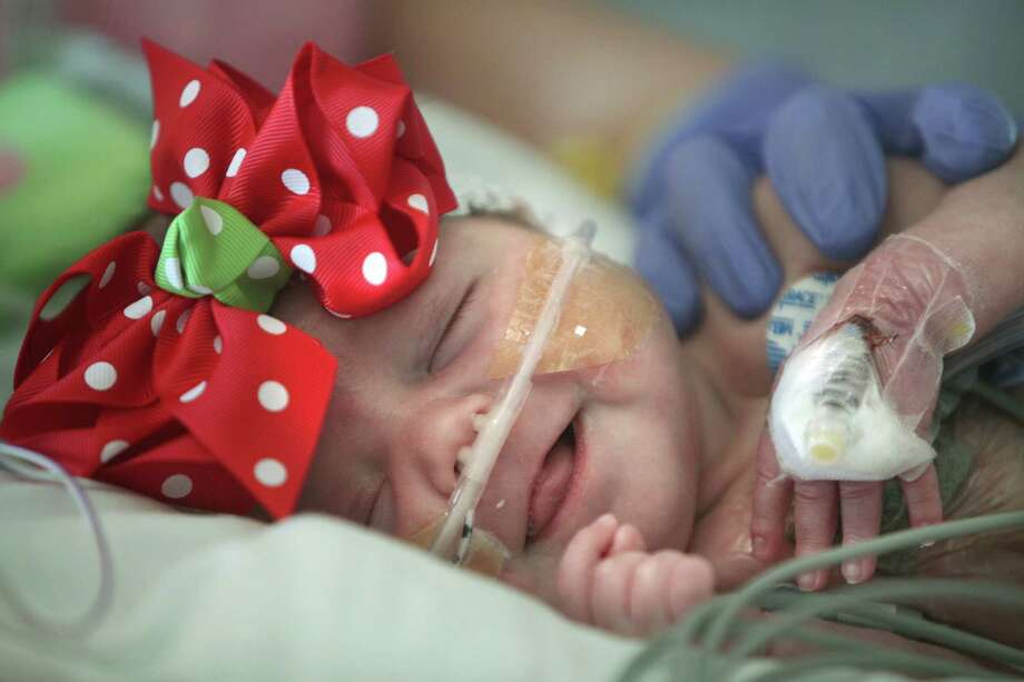Baby Audrina Cardenas smiles during occupational therapy at Texas Children's Hospital on Thursday, Dec. 13, 2012, in Houston. Audrina Cardenas was born with a third of her heart growing outside her chest, a condition called ectopia cordis. Approximately, 90 percent of the infants born with this condition are either stillborn or die shortly after birth. Those who survive are often subject to stunted, abbreviated lives. Audrina has survived 3 months, making her the longest recorded survivor in Texas. ( Mayra Beltran / Houston Chronicle ) Photo: Mayra Beltran, Staff / © 2012 Houston Chronicle