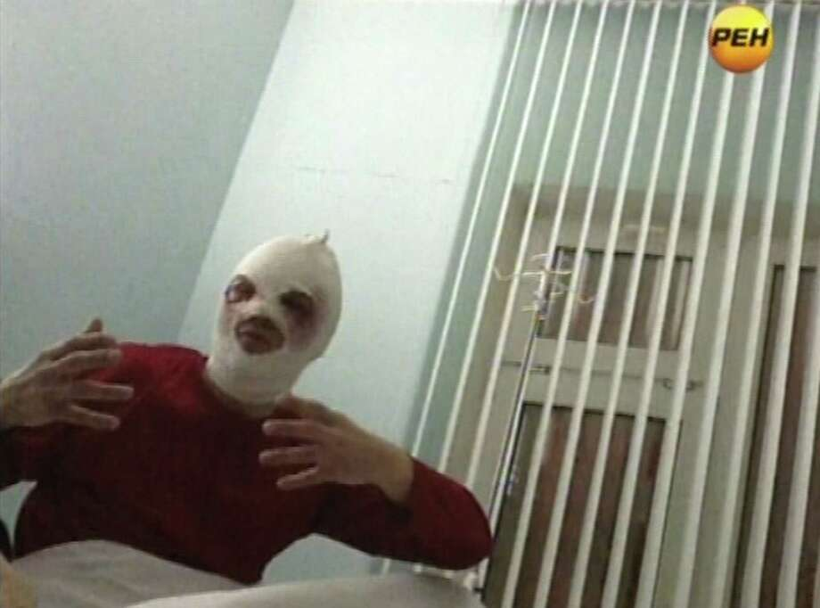In this video grab provided by RenTV via APTN, artistic director of the Bolshoi ballet Sergei Filin gestures in a hospital in Moscow, Friday, Jan. 18, 2013 where he is being treated.  Filin, a 42-year-old former Bolshoi star, said a man threw the acid into his face late Thursday near the gate of his apartment building in central Moscow. Colleagues said Friday the could be in reprisal for his selection of dancers in starring roles at the famed Russian company.  (AP Photo/RenTV) TV OUT Photo: Associated Press / RenTV