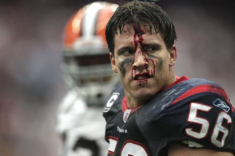 Houston Texans inside linebacker Brian Cushing walks off the field with his face bloodied after an altercation with Cleveland Browns offensive guard Shawn Lauvao during the second quarter of an NFL football game at Reliant Stadium in Houston. (Brett Coomer/HC