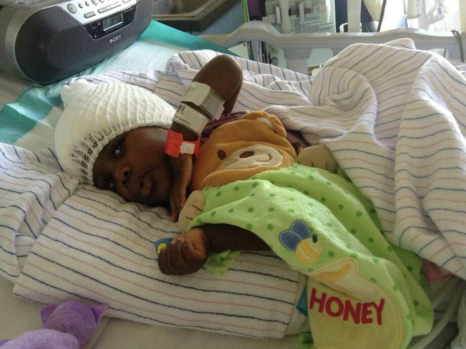 "Ivela, a 2-year-old Haitian orphan suffering from ""water on the brain,"" is recovering from surgery performed at North Central Baptist Hospital. Photo: Courtesy Photo"