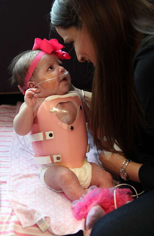 Ashley Cardenas plays with her daughter Audrina Cardenas, 3 months, shortly before getting her dress to be discharged from Texas Children's Hospital on Wednesday, Jan. 23, 2013, in Houston. Audrina was fitted with a protective shield in order to safely be discharged from hospital. Audrina Cardenas, was born with much of her heart outside her body, a highly unusual condition that's usually fatal within the first few days after birth. Photo: Mayra Beltran, Associated Press