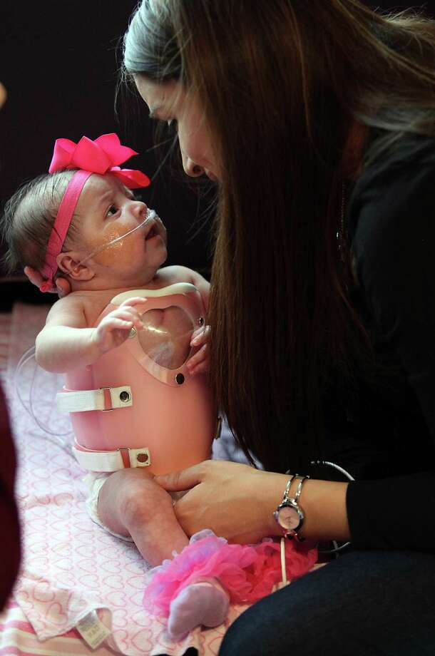 Ashley Cardenas plays with her daughter Audrina Cardenas, 3 months, shortly before getting her dress to be discharged from Texas Children's Hospital. Audrina was fitted with a protective shield in order to safely be discharged from hospital. Photo: Mayra Beltran, Houston Chronicle / © 2013 Houston Chronicle