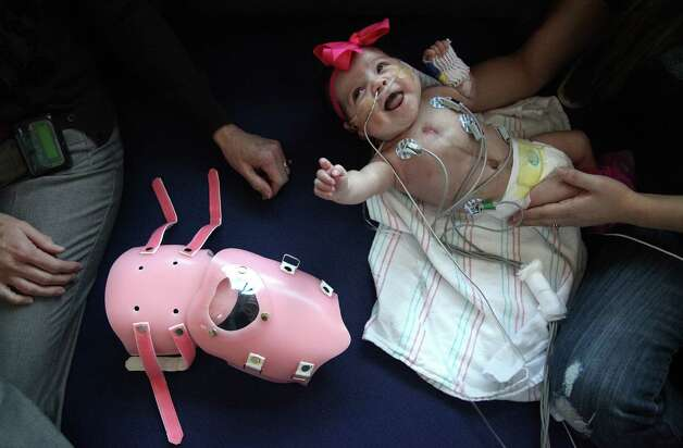 Audrina Cardenas, 3 months, looks back to smile at Dr. Carrie Altman, a pediatric cardiologist, as a steady stream of doctors inspect her heart protective sheild. Photo: Mayra Beltran, Houston Chronicle / © 2013 Houston Chronicle