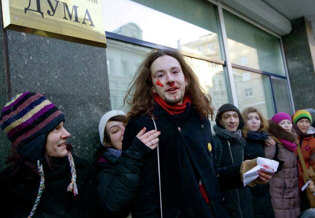 "Russian gay rights campaigner Sergei Gubanov gestures with blood on his face, during a protest outside of State Duma, Russian Parliament's lower chamber, in downtown Moscow, Russia, on Tuesday. Gubanov was beaten up by an unidentified Orthodox activist. A federal law banning ""homosexual propaganda"" has been submitted to the Duma late last year and hailed by officials and Russia's dominant Orthodox Church. Photo: AP"