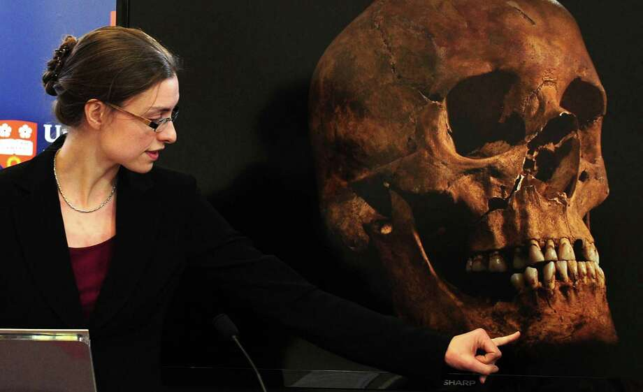 "Jo Appleby, a lecturer in Human Bioarchaeology, at University of Leicester, School of Archaeology and Ancient History, who led the exhumation of the remains found during a dig at a Leicester car park, speaks at the university Monday Feb. 4, 2013. Tests have established that a skeleton found , including this skull, are ""beyond reasonable doubt"" the long lost remains of England's King Richard III, missing for 500 years.(AP Photo/Rui Vieira, PA)  UNITED KINGDOM OUT - NO SALES - NO ARCHIVES Photo: Rui Vieira"