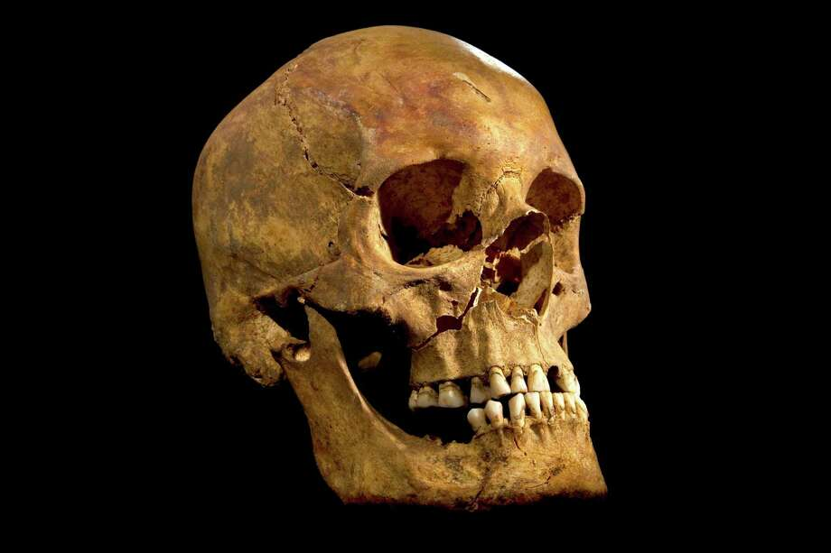 The skull of Richard III, cast - perhaps unfairly - as a villain by William Shakespeare in his play. Photo: HONS / University of Leicester
