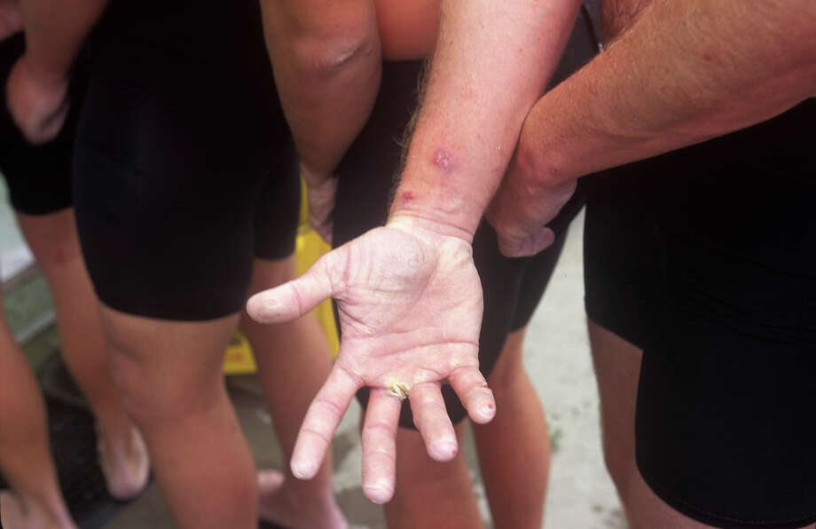 A Navy Seal trainee displays blisters suffered during Hell Week in this undated photo taken in 2000 at the Coronado Naval Amphibious Base in San Diego, California. Photo: Joe McNally, Getty Images / 2000 Joe McNally
