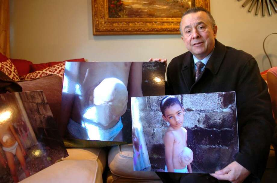 "Old Greenwich, Dec. 29, 2009.  Rodolfo Rodriguez, the executive director of ""...One at a Time"", holds a photograph of Victor Dariel, 7 from the Dominican Republic, whose intestines are outside of his skin.  Rodriguez hopes to find a pro bono surgeon who will help him. Photo: Helen Neafsey / Greenwich Time"