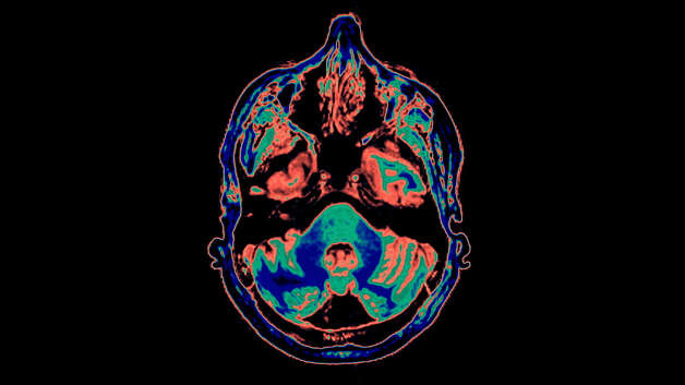 "CAT Scan and MRI Images in color in Nova's, ""Mind of a Rampage Killer."" Photo: Handout / ONLINE_YES"
