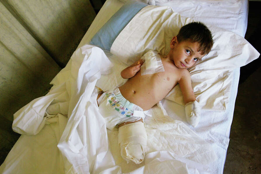 Ali Nassar Fadil, 4 years old, lies in a ward at the Italian Red Cross hospital, on April 13, 2004 a