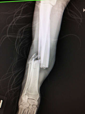 This Friday Feb. 21, 2013 photo shows an x-ray of the fracture that Luke, a flat-coated retriever, received after being struck on Interstate 64 near Dunbar.  Troopers rescued the dog. Photo: AP