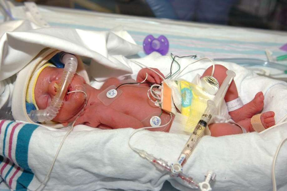 First Babies Of The Year Premature Twins Connecticut Post