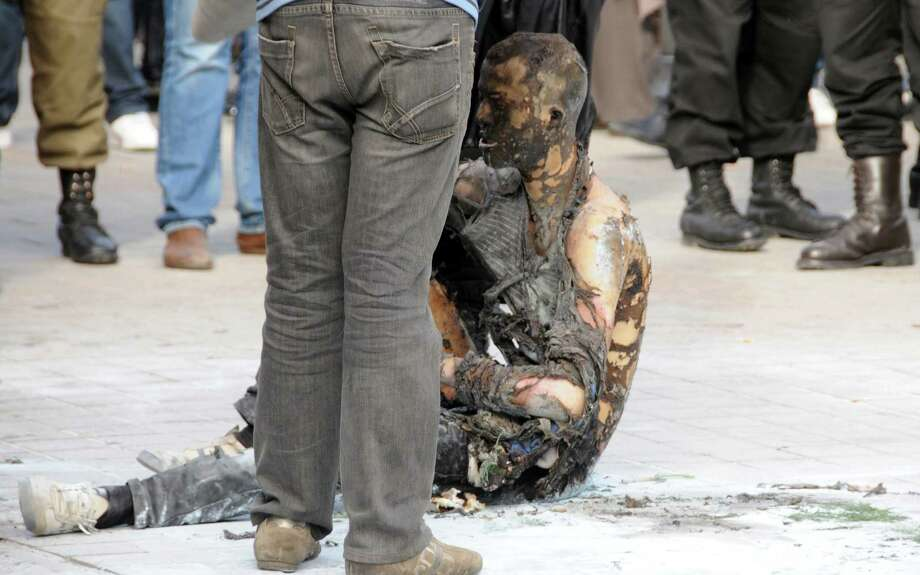 An unidentified Tunisian street vendor is sitting on the ground after he doused himself with gasoline  and self fire to himself in Tunis on Tuesday. The street vendor has set himself on fire in Tunisia's capital, reviving memories of the self-immolation that helped spark the Arab Spring uprisings. Burns center director, Imed Touibi,  said the 27-year-old cigarette vendor, from a poor town in northwestern Tunisia, set himself ablaze Tuesday and is in a coma with 90 percent burns. Photo: AP