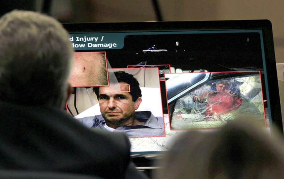 Evidence photos showing injuries to John Goodman and window damage on the car he was driving are shown during court proceeding in  John Goodman's DUI Manslaughter trial in West Palm Beach, Fla., Tuesday, March 13, 2012. Goodman is accused of driving drunk and leaving the scene of the February 2010 crash that killed 23-year-old Scott Wilson.  (AP Photo/The Palm Beach Post, Lannis Waters, Pool) Photo: Lannis Waters, Associated Press / Pool, The Palm Beach Post