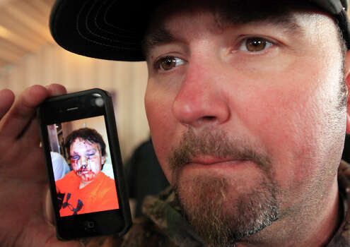 Bryan Anderson shows a photo, Thursday April 18, 2013, of his son Kaden Anderson, 9, after an explosion Wednesday evening at a fertilizer plant  in West, Tx. Both father and son were injured in the explosion. Photo: Edward A. Ornelas, San Antonio Express-News / © 2013 San Antonio Express-News