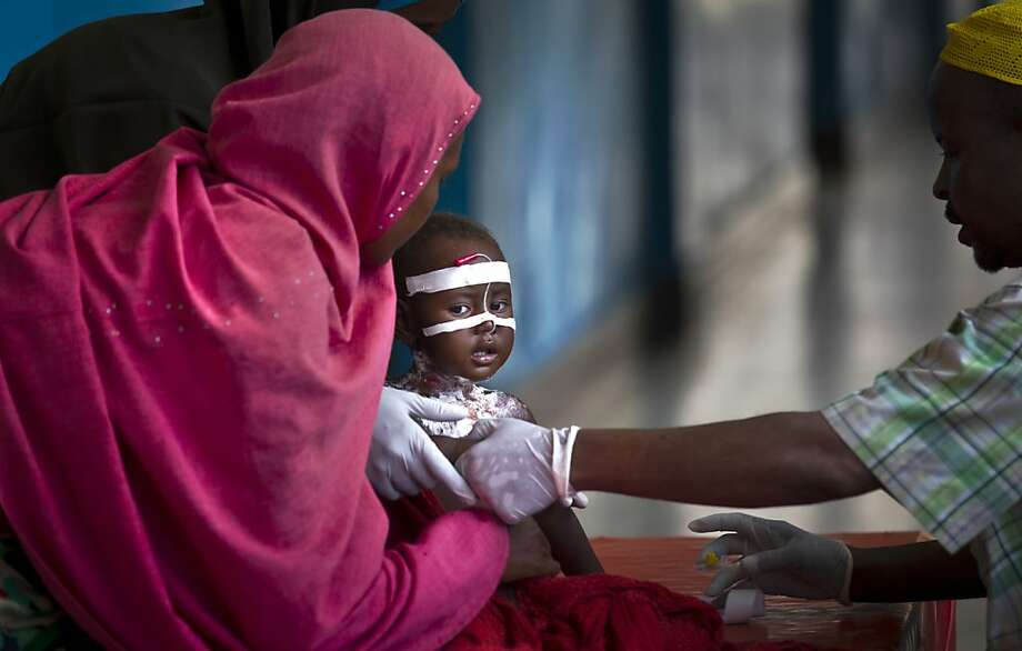 A Somali child with malnutrition is treated in the Benadir hospital in Mogadishu, Somalia Wednesday, April 24, 2013.  Photo: Ben Curtis, Associated Press