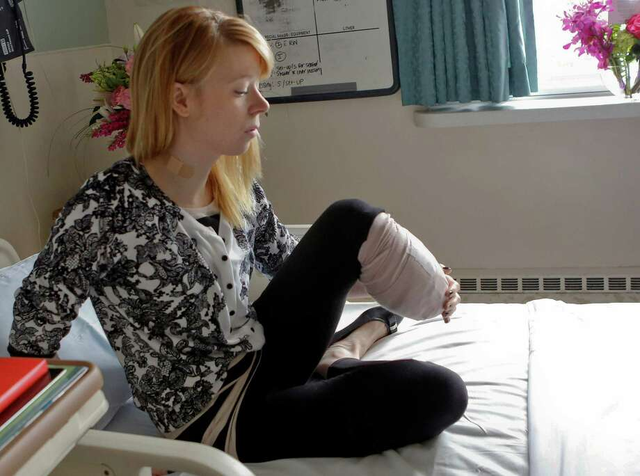 Adrianne Haslet, a professional ballroom dancer injured by one of the bombs that exploded near the Boston Marathon finish line, lost her left foot and part of her lower leg. She vows that she will dance again. Photo: Bizuayehu Tesfaye, FRE / FR30253 AP