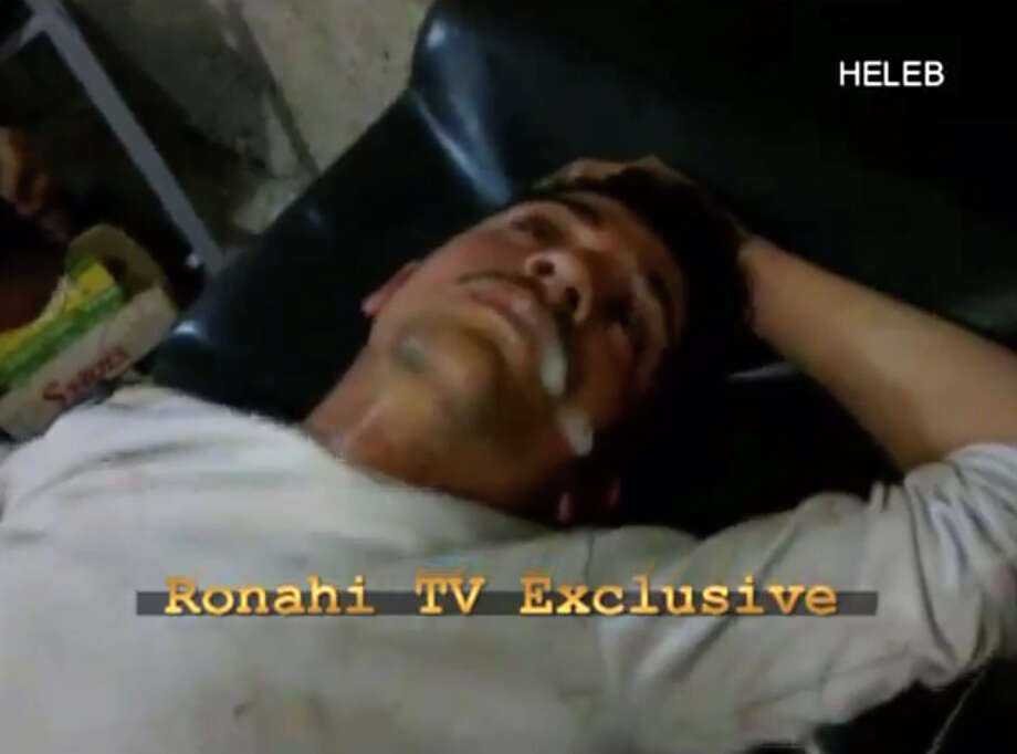 In this screen shot from amateur video provided by Ronahi TV, a man foams at the mouth and twitches while lying on a stretcher at a hospital in Syria. The video is consistent with AP reporting of an attack in the Sheikh Maqsoud neighborhood in Aleppo on April 13, although it was not known if the symptoms resembled those triggered by a chemical weapons attack. A defense analyst who viewed the video of the victims lying on stretchers after the attack said that, while it was impossible to verify that a nerve agent caused their symptoms, they appeared to be the result of something other than traditional weaponry. (AP Photo/Ronahi TV)  Photo: AP