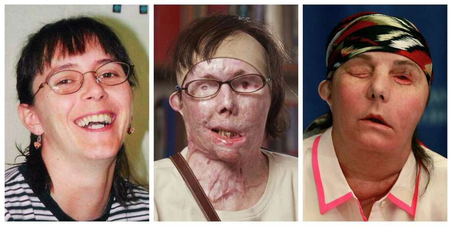 This photo combination shows Carmen Blandin Tarleton, who suffered chemical burns over 80 percent of her body when her estranged husband doused her with lye in June 2007. The undated photo at left, provided by the Blandin family, shows Tarleton before the attack. The center photo, provided by Brigham and Women's Hospital in Boston, shows Tarleton in July 2011. The photo at right shows Tarleton on Wednesday, May 1, 2013, after her successful face transplant in February. (AP Photo) Photo: HONS / Blandin family, Brigham and Wome