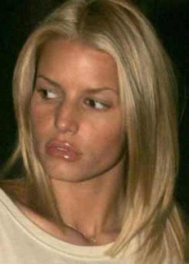 Jessica Simpson's lips were enhanced a little too much. Good thing lip injections aren't permanent. Photo: Handout