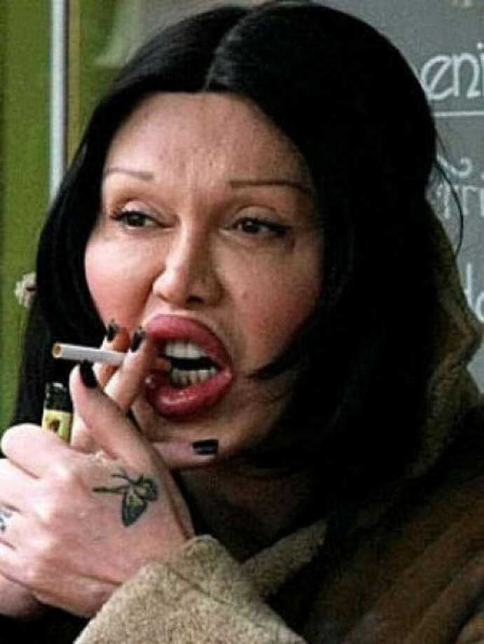 Singer Pete Burns won his medical malpractice lawsuit against the doctor who injected his lips with collagen. But he seems to have done a lot more since. Photo: Handout