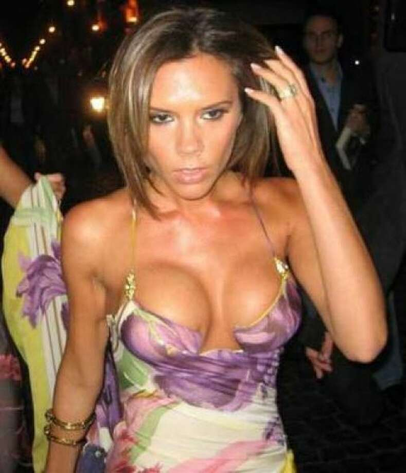 Victoria Beckham's implants are too big for her petite body. Photo: Handout