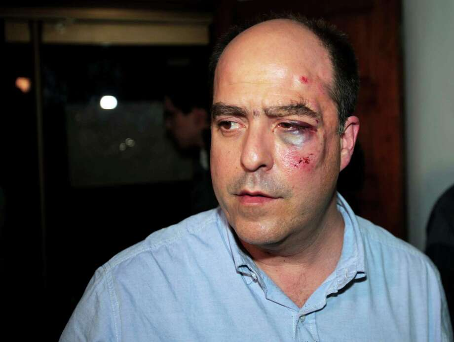 Opposition lawmaker Julio Borges arrives with a bruised face to his political party's headquarters before speaking to the press in Caracas, Venezuela, Tuesday, April 30, 2013.  Members of Venezuela's National Assembly say post-election tensions set off a brawl between lawmakers that left Borges badly bruised and bleeding, after he and other opposition lawmakers tried to protest a proposal barring them from legislative activities.  The opposition has refused to accept President Nicolas Maduro's narrow April 14 victory, prompting the pro-government side to try to bar them from the assembly. Tuesday's fight was the second in which opposition legislators said the other side attacked them. Photo: AP
