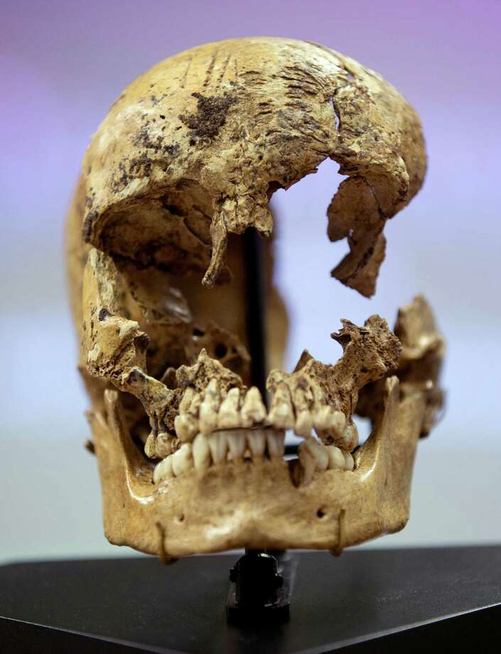 "Strike marks are seen on the skull of  ""Jane of Jamestown"" during a news conference at the National Museum of Natural History, Wednesday, May 1, 2013, in Washington.  Scientists announced during the news conference that they have found the first solid archaeological evidence that some of the earliest American colonists at Jamestown, Va., survived harsh conditions by turning to cannibalism presenting the discovery of the bones of a 14-year-old girl, ""Jane"" that show clear signs that she was cannibalized. Photo: AP"