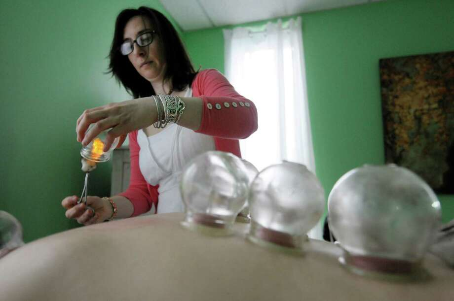 Bridgette Shea-Kinder performs a cupping treatment on her husband, yoga instructor Mark Kinder at Ageless Acupuncture on Wednesday, May 8, 2013 in Saratoga Springs, NY.  She is using cotton balls with rubbing alcohol, set on fire to create a vacuum inside the glass cup which will be placed on the skin.   Shea-Kinder uses glass cups to help release the stagnation in a person's channels and underlying tissue.   (Paul Buckowski / Times Union) Photo: Paul Buckowski