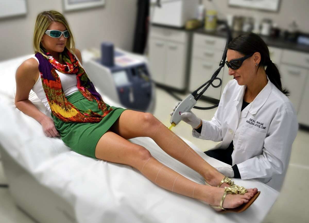 style: Ideal Image Laser Hair Removal Centers Open in Sugar Land and Webster