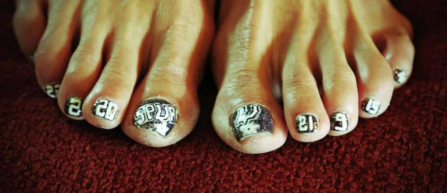 TOE SPURS TOE Photo: Courtesy