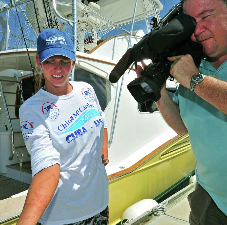 In this photo provided by the Florida Keys News Bureau, Australian endurance swimmer Chloe McCardel, left, shows painful jellyfish stings to Associated Press videographer Tony Winton Thursday, June 13, 2013, in Key West, Fla. McCardel was trying to become the first person to swim from Cuba to Florida without a shark cage. She was pulled from the water Wednesday, June 12, after being severely stung 11 hours into the swim that was expected to take about 60 hours. Photo: AP