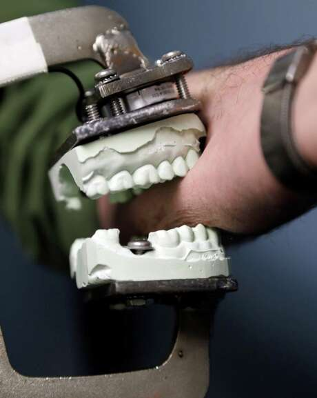 A dental mold attached to a modified vise grip is used to test bites on skin. the Texas Forensic Science Commission has recommended a ban on bite mark evidence. Photo: David Duprey, STF / AP