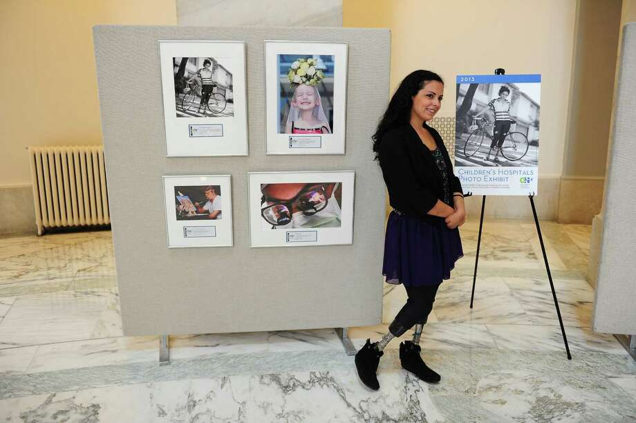 Jamie Schanbaum, 24, who lost her legs to meningitus poses next to a photograph of her on display at the Russell Senate Office Building rotunda on Capitol Hill in Washington DC. She was treated at Texas Children's Hospital in Houston. Photo: Mary F. Calvert, For The Chronicle / © 2013 MARY F. CALVERT