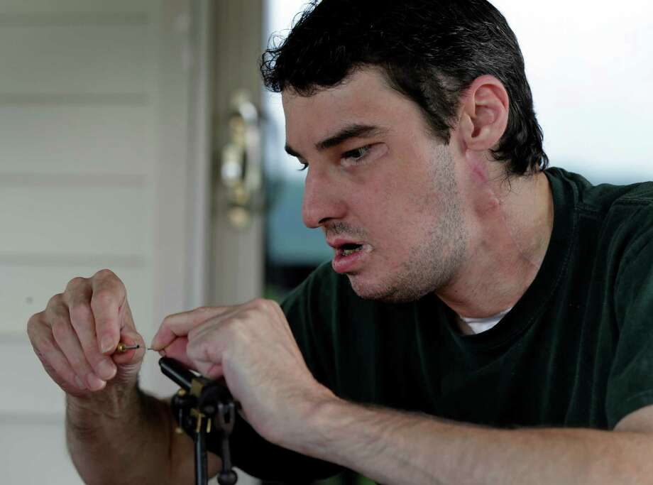 In this June 25, 2013 photo, Richard Norris ties a fishing fly at his home in Hillsville, Va. The man whose face was disfigured by a gunshot spent 15 years as a recluse, but now the 38-year-old is doing things he never would have before. Photo: AP