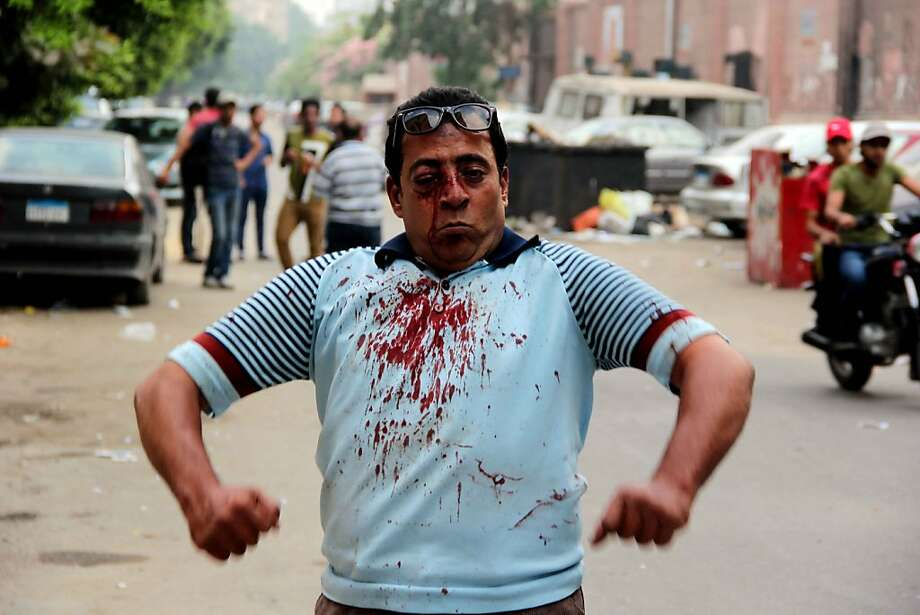 Bloody but not bowed,an injured protester stands defiantly during  clashes between residents and Muslim Brotherhood members outside Cairo University. Photo: Mohamed El-Shahed, AFP/Getty Images