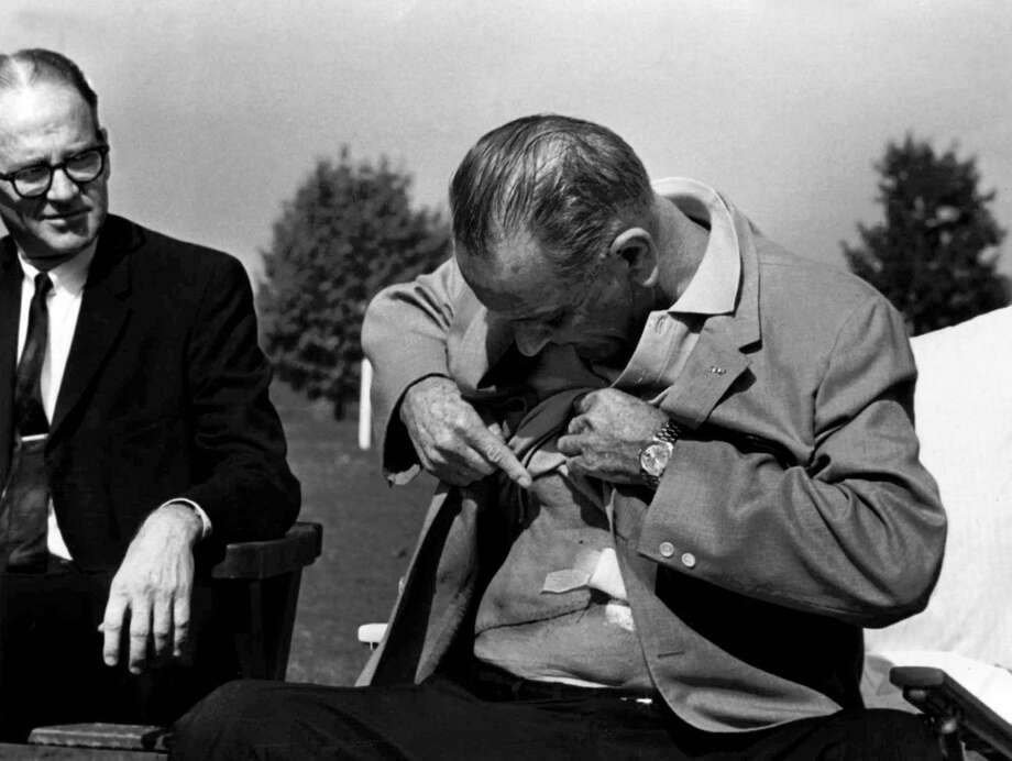 President Lyndon B. Johnson had a history of kidney stones. In this famous photo from 1965, he shows reporters the scar from his gall bladder surgery that also resulted in two kidney stones being removed. Photo: Charles Tasnadi, STF / AP