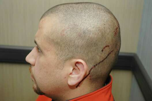 May 15, 2012 – An independent medical report by George Zimmerman's family doctor the day after the shooting shows Zimmerman was diagnosed with a fractured nose, two black eyes and two cuts to the back of his head.