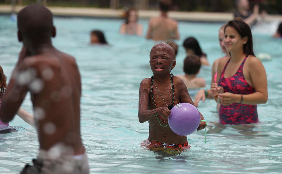 Sean Bigelow, 12, of Austin plays in the pool during Camp David - a camp for pediatric burn survivors - near Kerrville. Photo: Kin Man Hui, San Antonio Express-News / ©2013 San Antonio Express-News