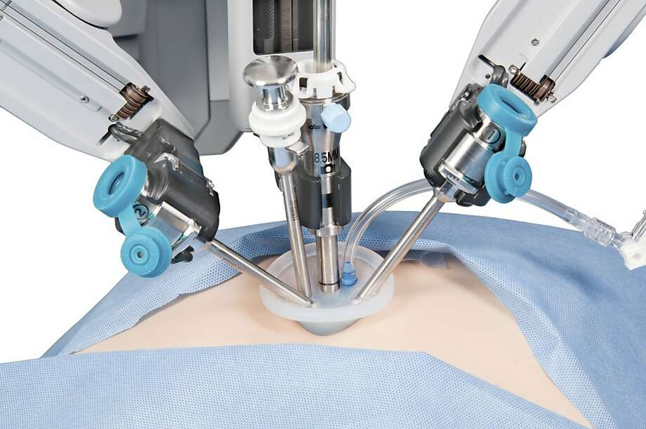 The new systems allow surgery with just a single incision, reducing recovery time for patients. Photo: Intuitive Surgical, New York Times